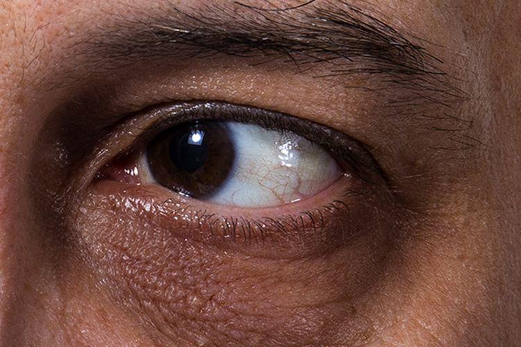 6 Sebab Bawah Mata Jadi Hitam Selain Masalah Kurang Tidur Soya Lemon Viral
