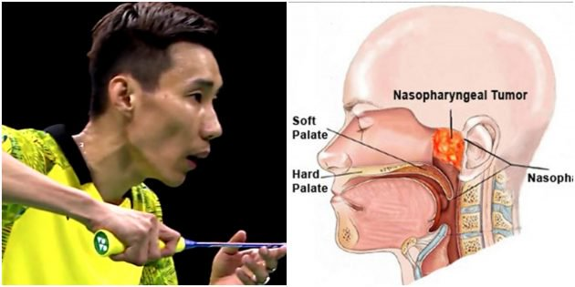 simptom kanser hidung